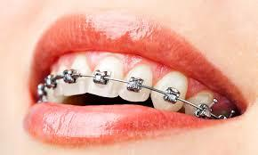 Braces Treatment in Rohini Braces Treatment in Pitampura Braces Treatment in Paschim Vihar  Prof Asheesh Gupta's (Dentist) clinic is the best clinic in dental treatment. He is one of the best Dentist in Delhi situated in Rohini, Delhi. ...  - by Dr Asheesh Gupta's Dental and Braces clinic, West Delhi