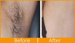 Unwanted hair on face and body can be distressful to both men and women. Many of them spend significant amount of time every morning on hair removal techniques such as electric shavers and creams. Apart from wasting precious time, these methods produce poor results that last only for a day or two. They are uncomfortable and cause uneasiness too  Laser hair removal is without doubt the most effective way to rid yourself of unwanted hair anywhere on the body. It's quick, easy and offers instant results. What's more, it's a far cheaper alternative in the long term. Laser hair removal techniques help clear large areas of unwanted hair quickly and easily. Patient do not suffer discomfort or complications.  For More Information http://www.skinappeal.in/  Laser Hair Reduction in Sector 50 Noida Laser Hair Reduction in Noida Permanent Hair Removal treatments in Sector 50 Noida Permanent Hair Removal treatments in Noida Body Hair Removal Clinic Sector 50 in Noida Body Hair Removal Clinic in Noida
