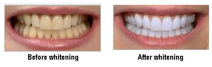 TEETH WHITENING  Tooth bleaching, also known as tooth whitening, is a common procedure in general dentistry but most especially in the field of cosmetic dentistry. Many people consider white teeth to be an attractive feature of a smile. A c - by Dental Vacations - Dental Tourism Division of Smile Centre, Kochi, Kerala, India, Cochi