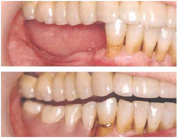 Partial Denture   Partial Denture is given when few or  more natural teeth are missing. This usually consists of teeth attached to pink colored acrylic base and may be reinforced by a metal framework.   Prime Dental care centre in Delhi.