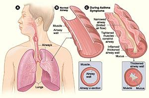 Ayurvedic Medicine For Asthma, We Are Providing Ayurvedic Treatment For All Upper Respiratory Disorders. With Ayurvedic Medicine Asthma Is Controlled & Use Of Inhalers Are Discontinued Slowly And Steadily.  We  Are Pioneers In Treating Allergic Cough, Cold, Sinusitis. Dr. Shridhar Aggarwal Have 15 Years Of Experience In Treating All Chronic Disorders Like Asthma. He treats by examining your nadi. For nadi pariksha you need to come empty stomach atleast for 2 hours.