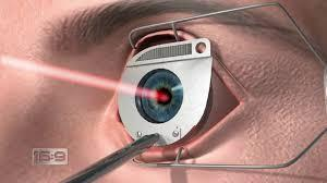 eye doctor in chandigarh LASIK is a surgical procedure that uses a laser to correct nearsightedness, farsightedness, and/or astigmatism. In LASIK, a thin flap in the cornea is created using either a microkeratome blade or a femtosecond laser. The surgeon folds back the flap, then removes some corneal tissue underneath using an excimer laser.
