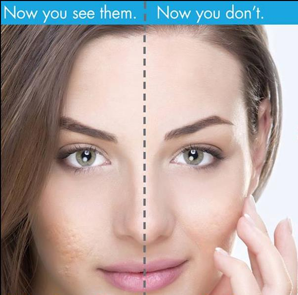 Monsoon Leads To Oily Skin, Which Further Causes Pimples.If Pimples Are Not Taken Care Of, They Can Leave The Marks On The Face. Rejuvena's Anti Ageing/ Cosmetic Skin Care Provide#AcneTreatment At The Reasonable Rate. #dr.Deepesh Cosmetic # - by Rejuvena Cosmo Care, Jaipur