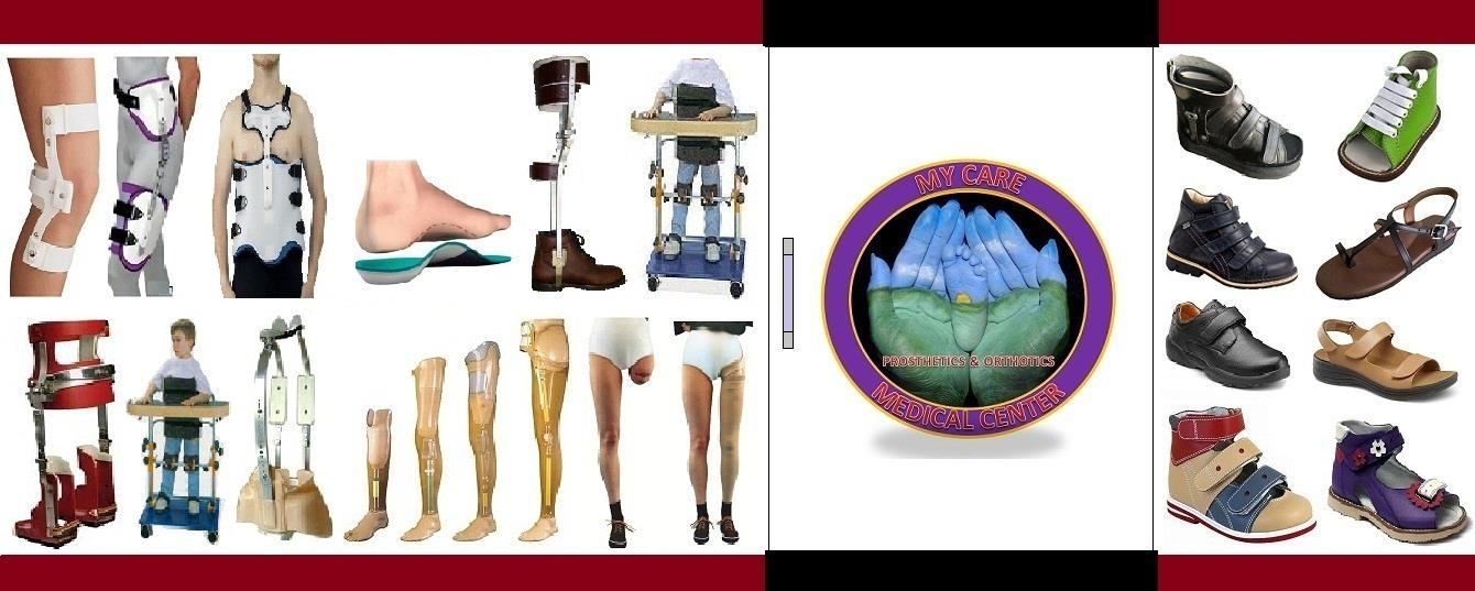 My Care Prosthetics and Orthotics Medical Center.  Manufacturers of Prosthetic Leg, Orthotic Insole, knee callipers, Polio KAFO, Artificial limbs, Milwaukee Brace, Scoliosis brace, knee brace, hand splint, orthopaedic shoe, corrective footwear.