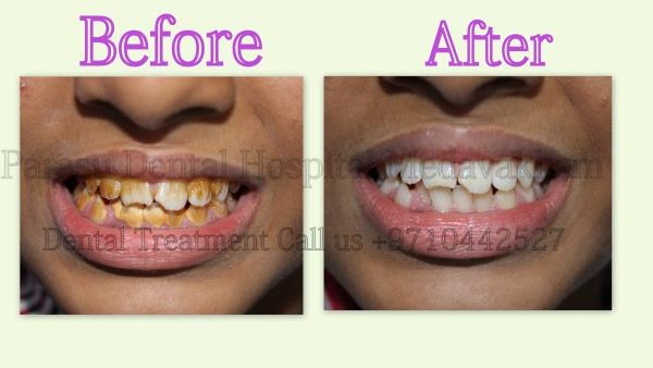 Patient came to our Hospital with Unhappy Smile and deposits in his    Teeth so we Suggest Full Mouth Teeth  Cleaning Treatment.. Patient With Happy Smile  For Further Dental Treatment and cost   Email :-  parasudentalimplantcenter@gmail.co - by Parasu Dental Hospital - 9710442527, Chennai