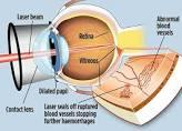 laser eye surgery in chandigarh LASIK is a surgical procedure that uses a laser to correct nearsightedness, farsightedness, and/or astigmatism. In LASIK, a thin flap in the cornea is created using either a microkeratome blade or a femtosecond laser. The surgeon folds back the flap, then removes some corneal tissue underneath using an excimer laser.