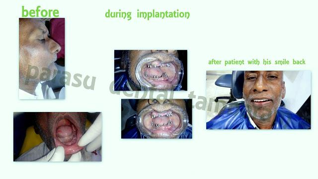 A patient from malasiya complanits of loose denture reported to our dental office for that problem . we adviced him implants as fixed option then we placed dental implant  within 3 days we gave a fixed teeth  patient with happy smile !!!  - by Parasu Dental Hospital - 9710442527, Chennai