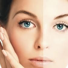 Skin Lightening with Q-SWITCHED ND-YAG Laser  Skin lightening is required if any patient has hyperpigmentation. Most of the time acne scar, age spots create black patches on the skin. Flawless skin is the secret weapon of beautiful look an - by Dr. Parthasarathi's Asian Hair & Skin Hospital, Bangalore