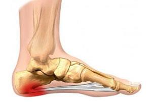 Plantar fasciitis, also known as plantar fasciosis or jogger's heel is a disorder that results in pain in the heel and bottom of the foot. The pain is usually most severe with the first steps of the day or following a period of rest. Pain i - by Dr.Vijay's Physiotherapy & Rehabilitation Centre call for appointment- 7087445111, Panchkula