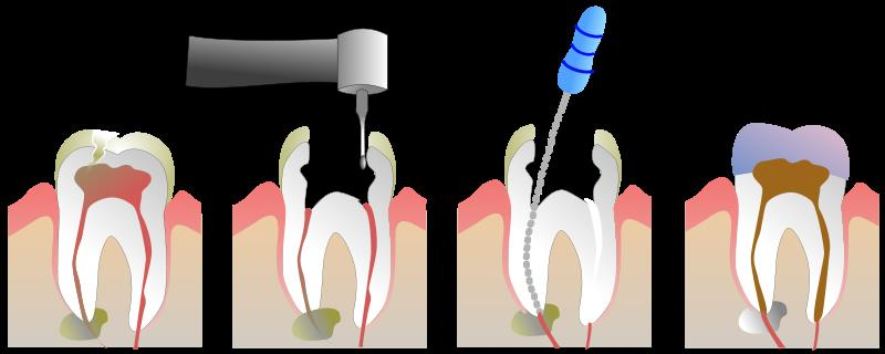 Root Canal Treatment   Suffering from tooth pain? It may be due to a decay in your teeth which has reached the dental pulp (living portion of teeth).  In root canal or endodontic treatment, We remove the inflamed or infected pulp and the inside of the tooth is carefully cleaned and disinfected, then filled and sealed with a rubber-like material called gutta-percha. Afterwards, the tooth is restored with a crown or filling for protection.  Book an appointment with us to solve your dental concern.    Root Canal Treatment India, Rootcanal Treatment Kerala, Root Canal Treatment Kochi, Root Canal Treatment Price India, Root Canal Treatment Price Kerala, Root Canal Treatment Price Kochi, Hollywood Smile India, Hollywood Smile Kerala, Hollywood Smile Kochi, Hollywood Smile Price India, Hollywood Smile Price Kochi, Hollywood Smile Price Kerala , Medical Travel India, Medical Travel Kerala, Medical Travel Kochi, Health Travel India, Health Travel Kerala, Health Travel Kochi, Dental Tourism India, Dental tourism Kerala, Dental Tourism Kochi