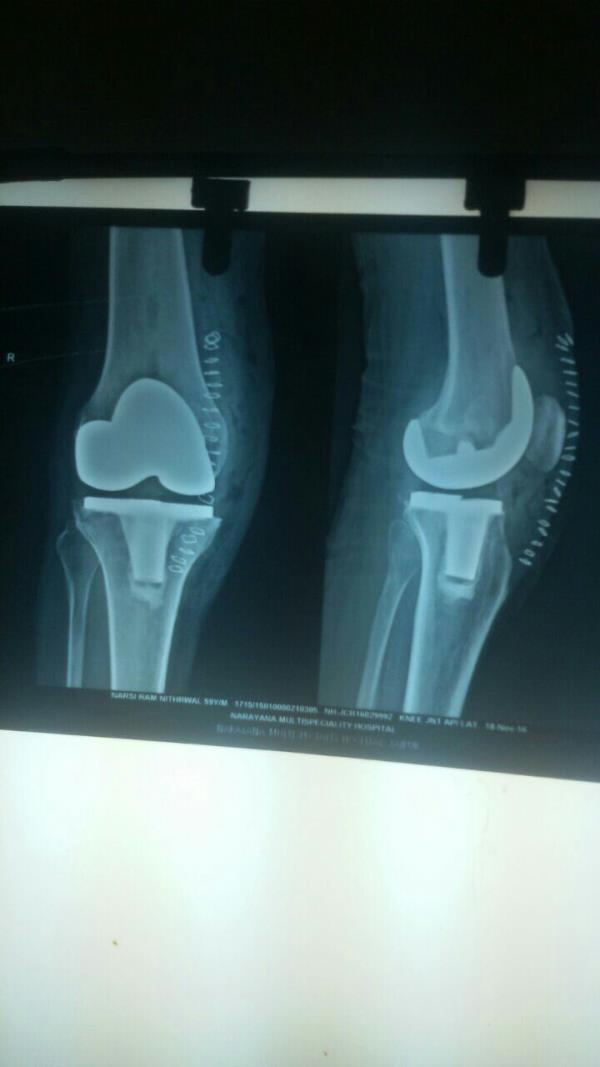 Perfomed Total Knee Replacement by Mini Subvastus approach (through which unicompartment knee replacement is performed) first time in northern India. incision size is 11 cms. VMO muscle s neither cut nor slided or lifted. Knee was not dislo - by Joint-Care : Joint Replacement & Arthroscopy Super-speciality Services, Jaipur