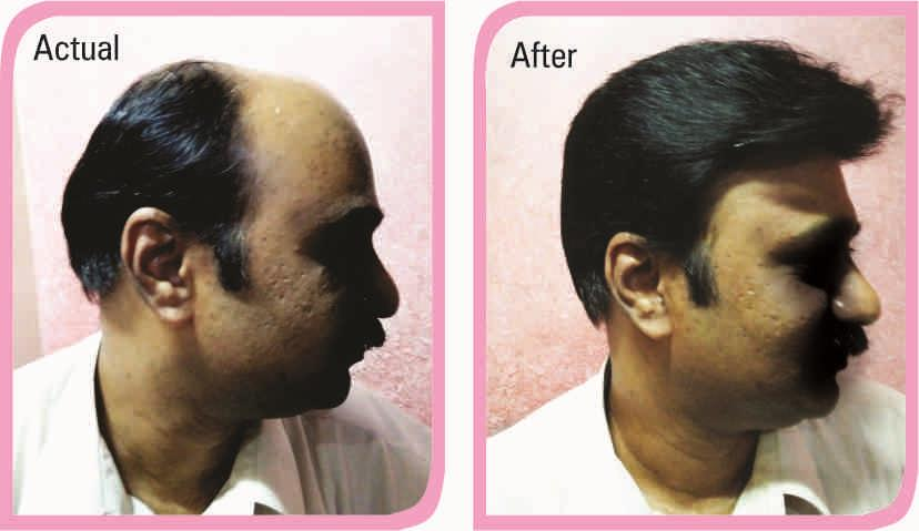 Hair loss treatment for men in Panaji Goa at budget prices