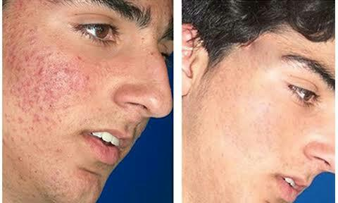 dermatologist in noida ..dr singh is one of the best dermatologist in noida .it's provide best treatment of skin diseases .