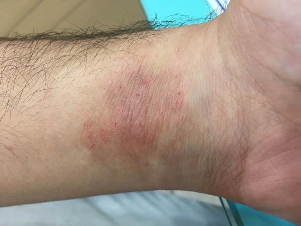 Dermatitis On Wrist