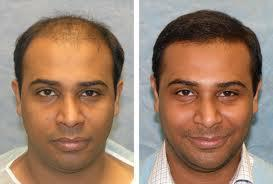 world best technology to overcome you baldness