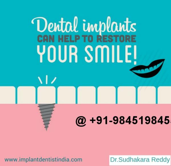 easy implant placement basal implants in india best basal implant dentist in india best implant dentist in india best implant specialist in bangalore implants specialist in bangalore  - by DentalImplantsindia, Bangalore