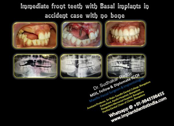 BASAL IMPLANTS basal implants in india advantages of basal implants basal implantology immediate loading implants basal implantation dental implants in india basal implants specialist in india same day fixed teeth with implants implant expe - by DentalImplantsindia, Bangalore