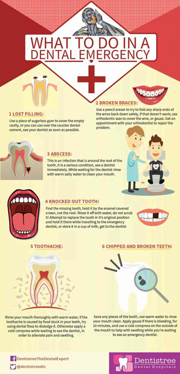 DENTAL EEMERGENCY -THE TO DO LIST