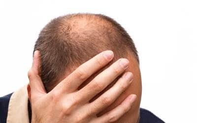 Worried About Hair LOSS ??!!   Platelet Rich Plasma (PRP) - Worlds safest Treatment for HAIR LOSS in Kumarswamy Layout, Banashankari, Bangalore   Contact US: www.drhairskin.com 8971055111