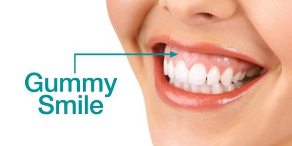 Gummy Smile Treatment in Gurgaon  When you smile too much Gum Tissue is exposed. If your Gums are exposed because the upper lip is lifted too high when you smile then a Gummy Smile Correction could be the solution. Gummy Smile Treatment to loosen the join between the Gums and the upper lip.  For Gummy Smile Treatment, get an Appointment now or visit http://dentalaesthetica.co.in/