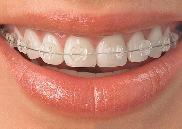 Dr voras Dental Clinic offers the best solutions for invisible braces.  No longer you are compelled to wear metallic braces to correct your smile. Now you can conveniently get your treatments done without anyone noticing you wearing braces. New attractive packages available. For more details visit: www.drvorasdental.com # best dental clinic in mulund #invisiblebraces #braces in mumbai #smile design mumbai # best dental clinic in mumbai # affordable Braces # smile design mulund