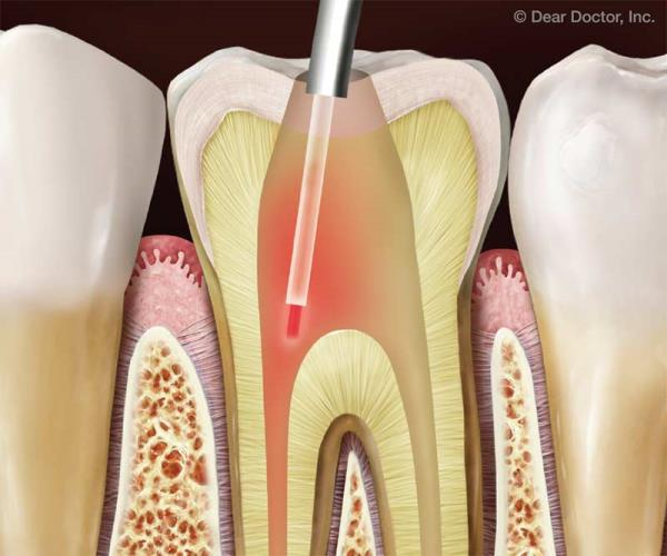 Laser Assisted Root Canal Treatments  Smile please Dental Clinic offers the best in class Laser Assisted Root Canal Treatments in one sitting only. These procedures carried out by our super specialists ensure you best results and comfort.   For more details visit: www.smiileplease.com  We also specialise as: #dental implant centres in India #cosmetic dentist in India #dentist for Dental Veneers in India #best dental clinic in India #dental implants in india #smile makeover in india
