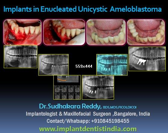 Nucleoss dental implants Implants in cyst case implants in unicystic ameloblastoma dental implants in enucleated ameloblastoma case  implants in cystic areas implants in dental tumour resected areas Dr.Sudhakar reddy Dental implants in maxi - by DentalImplantsindia, Bangalore