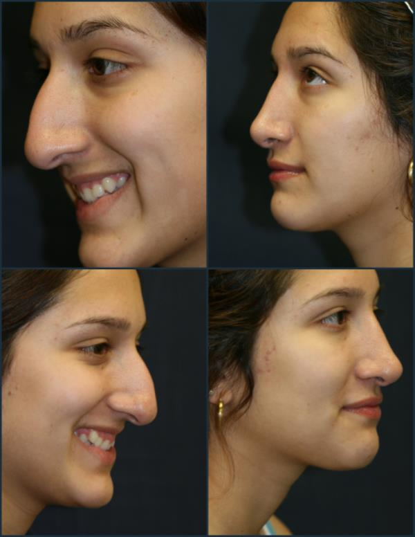 Rhinoplasty Surgery In Chennai,          Rhinoplasty is a well-established procedure that has been helping men and women feel more attractive and self confident for years.One of the most popular forms of aesthetic surgery, it may be done in two different ways:   In closed Rhinoplasty, all incisions required to reshape the tip and bridge of the nose are placed inside the nostrils. As a result there are generally no external scars, unless the size of the nostrils is also reduced (alar base reduction.) In this situation, there may be small scars in the furrow between the nostril and the lip. If the tip of the nose requires considerable reshaping, a small scar under the midline of the nose may also be necessary.  In open Rhinoplasty in addition to the incisions inside the nostrils, there is a small incision placed on the columella (the small bridge of skin between the nostrils.) Some surgeons prefer this approach because it gives them greater control if intricate reshaping is required for the cartilages in the tip of the nose. The advent of computer simulation in the preparation for surgery, leads to greater accuracy of the planning process and therefore higher expectations from the patient. Our practice believes open tip Rhinoplasty offers a more accurate way of achieving these specific targets.