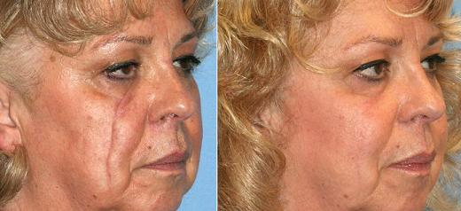 Facial Scars Revicion Treatment in Chennai,     Facial scar revision is a procedure that can minimize an unsightly scar. The procedure can make a scar less noticeable or essentially replace the scar with a less prominent one.  REASONS FOR SCAR REVISION People choose scar revision to minimize the appearance of scars caused by: • Injury • Surgery • Burns  Good candidates for facial scar revision are healthy nonsmokers who understand the benefits and limitations of the procedure. If excisional scar revision is recommended, the procedure cannot be completed sooner than six months after the scar formation. For More Details: http://www.desireaesthetics.co.in/facial-scars-revision/