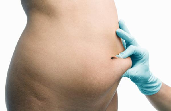 Tummy Tuck Surgery in Gurgaon | Abdominoplasty in Gurgaon   Tummy tuck is a cosmetic procedure which helps in getting rid of excessive skin and fat deposits. It restores separated and weakened muscles creating much firmer, flatter and smooth abdominal profile. Desired for having flat and toned tummy is the desire of all, both men and women, at any age. Sometimes even diet and exercise cannot help in achieving desired abdomen. There are many people who have normal body weight, however develop sagging or loose skin around abdominal area. The plastic surgery clinic is a one-stop clinic for patients who want to undergo tummy tuck surgery in Gurgaon.  For More Details: Ask Us?