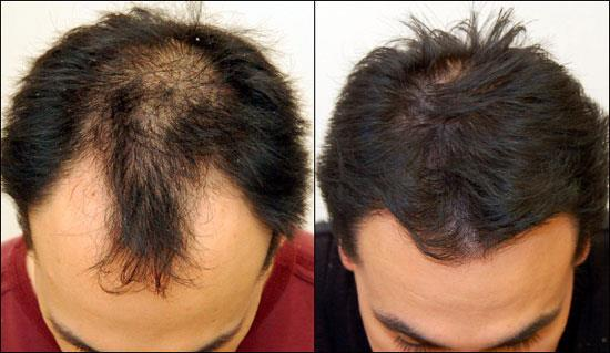 PRP hair treatment (platelet rich plasma) and Stem Cell Treatment in Panjim Goa  Call – 8007411550/8007411559