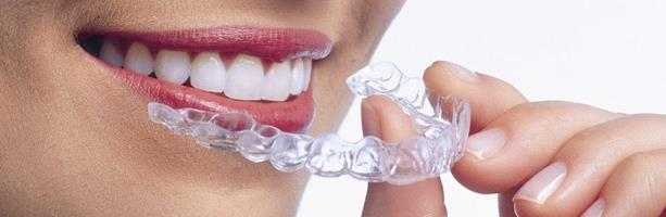 What are some signs that Braces may be needed? Upper front teeth protrude excessively over the lower teeth, or are bucked Upper front teeth cover the majority of the lower teeth when biting together  Upper front teeth are behind or inside t - by FineFeather Dental , Vasna Vadodara, Baroda