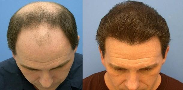 Hair Baldness Treatment :  Baldness Treatment Home Remedies , Baldness Treatment in Ayurveda , Male Pattern Baldness Cure Natural , Hair Regrowth Home Remedies , Treatment for Baldness in Females , Male Pattern Baldness Cure 2017 , Hair Regrowth for Men Naturally ,  Male Pattern Baldness Cure Discovered