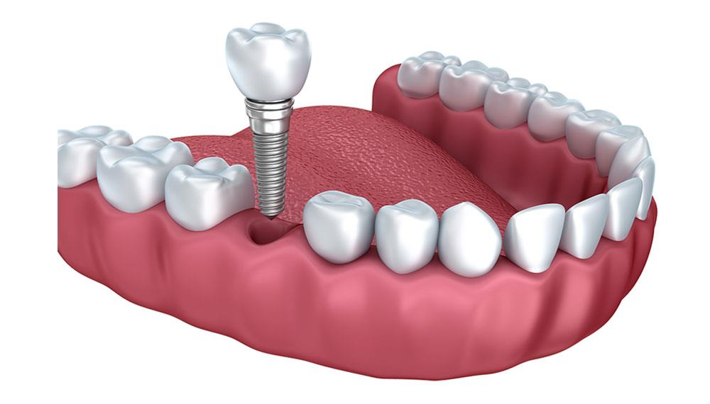 Dental Implants are the best dental prosthesis available in the market if aesthetics is considered. Dental Implants appear and function like natural tooth due to its feature of being embedded into the alveolar bone. Also, Dental Implant can - by FineFeather Dental , Vasna Vadodara, Baroda