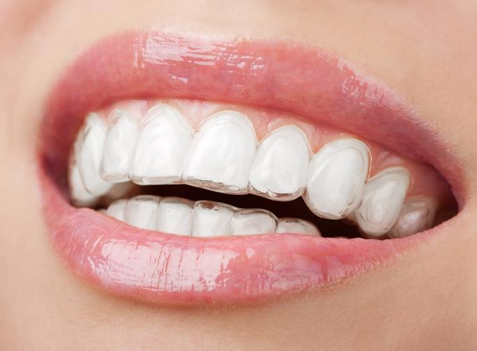 Invisible Braces are great for people who do not have severe problems. The Braces consist of strong plastic trays that are fabricated especially for you. The Invisible Braces treatment involves wearing a series of clear, removable and, comf - by FineFeather Dental , Vasna Vadodara, Baroda