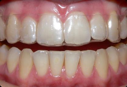 aligners - this is how it will look