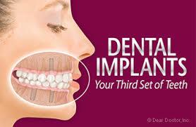 We deal in Dental Implants which act as single tooth or multiple tooth replacements. Our Orthodontist make sure that they provide stable support with the Dental Implants treatment. To receive Dental Implants, you need to have healthy gums and adequate bone to ensure that it's long lasting. Our Orthodontist at our Dental Clinic also give you tips on oral hygiene during regular check ups which is critical for retaining the Dental Implant.