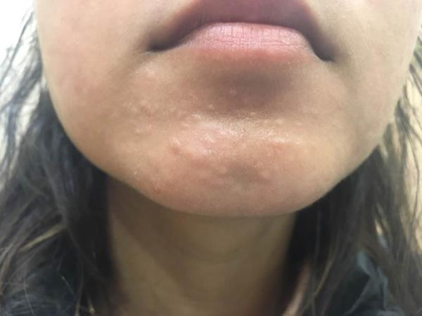 ACNE SCARRING - --if u don't treat acne well in time.   Dr Ashima Goel SCO 76,  first floor, Above AIRTEL,  sector 15D Chandigarh- 160015 www.parisadermatology.com M - 9780981403