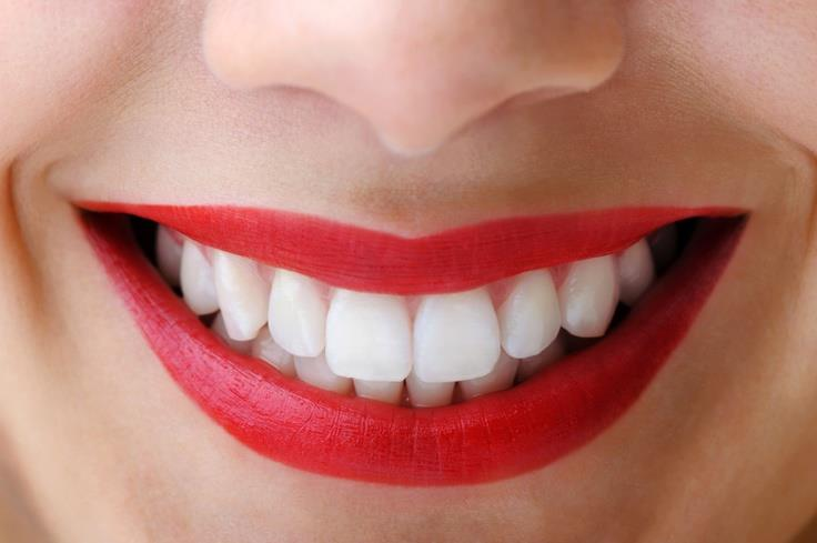 Teeth Whitening: Embarras