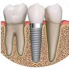 Get rid off the poor fitting dentures which cause you to stammer or mumble your words. Our Dental Implants allow you to speak without the worry that teeth might slip. At our Dental Clinic, you will get profound knowledge of how you can easi - by FineFeather Dental, Vesu, Surat