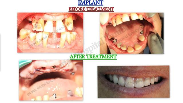Patient from omen came to our hospital with the chief complaint of teeth mobility and unable to chew foods.we advised removal of all upper teeth and fixed replacement with Nobel All On 4 implants. Now patient with a HAPPY SMILE and she able to chew all foods.