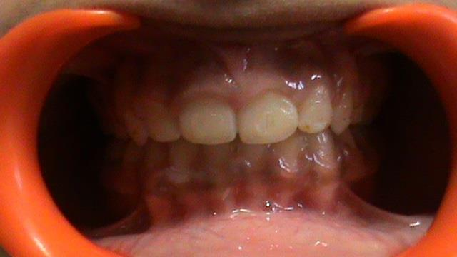 Gummy Smile   Patient complained of small-sized teeth and gummy smile. Smile makeover was done using crown-lengthening procedure by modern state of the art Dental Lasers.  Superspeciality dental clinic in North Delhi.