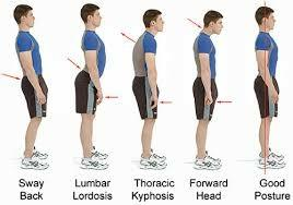 linic for Posture related Pain in GurgaonPAL PhysiothetapyPainful conditions associated with poor posture are so common that most people have some firsthand knowledge of these problems.Low back painis the most frequent complaint but research showsneck, shoulder and arm pain has become increasingly widespread as a result of postural dysfunction. Foot and knee problems are also becoming more common due to the emphasis on running and fitness.For more Information:www.palphysiotherapy.comCall: +9198113417, +919899343417