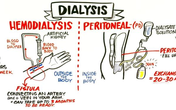 Peritoneal Dialysis , A doctor performs a surgery where he places a plastic tube called a catheter in to the abdomen of the dialysis patient to produce an access. During the therapy, the abdominal area is gradually filled up with dialysate through the catheter that helps remove excess fluid from the body.