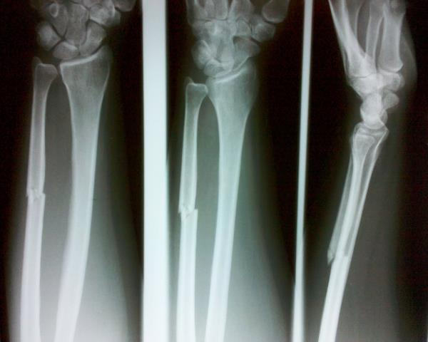 Best Orthopaedic Specialist in Chennai :