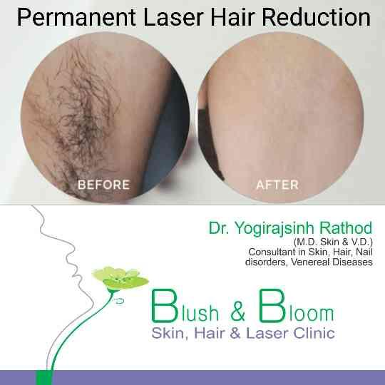 Body hair removal for men by our unique Exilite...... Visit Blush& BloomSkinHair& LaserClinic, Bopal, Ahmedabad