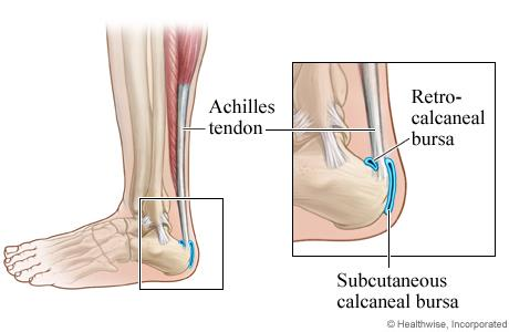 I Have Severe Pain in My Heel When I Get Up From My Sleep, but My Pain Is Reduced After Few Steps of Walking, If I Sit For Few Hours and Start To Walk I Get Pain In My Heel But Pain Reduced After Few Steps Of Walking. I Could Also See a Small Protrusion to My Back Of My Heel, These Are The Common Complaints that the Patient Enters My Consultation Room, When a Patient Comes With The Above Said Problems it Can Be of Either Condition Called Retrocalcaneal Spur or Retrocalcaneal Bursitis. Both Problems Imitates with the Same Complaints, With an X ray Investigation and Clinical Special Tests We Can Rule Out and Give the Final Diagnosis Between Spur and Bursitis. In Dr. Harish's Sai Healthcare Foundation, Mylapore, Chennai. We do Proper Assessment and do Investigation with Differential Diagnosis and fix Patients Diagnosis and Give Treatment Plan so that 100% Results On Pain Relief is Achievable. In Physiotherapy for the above said Condition Normal Protocol of Treatment Will Be With Ultrasound Therapy And Wax therapy with Foot Wear Modification Depending on the Final Diagnosis of the Patient. We Also Train Them on Stretching Exercises to the Calf and Foot Muscles to Relax the Structures. These Treatment Protocol are Planned Accordingly @ Dr, Harish's Sai Healthcare Foundation, Mylapore, Chennai.