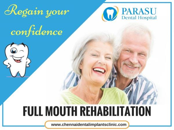 #Full_Mouth_Rehabilitation is for individuals who have lost all their teeth. An Implant-Supported Full Bridge or Full Denture can replace both the lost natural teeth and some of the roots.  Visit Our Website:-   www.chennaidentalimplantsclinic.com/full-mouth-rehabilitation