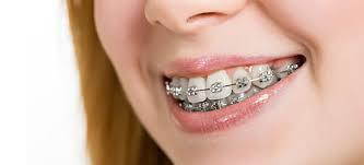 How long will you have to wear Braces and how often will you have to come in for an appointment?  Depending on the case of your Braces treatment you have got done at our Dental Clinic, it may be anywhere from 6 months to 3 years. After the initial consultation and placement of the Braces, and the treatment is under way, appointments are usually every 4 to 6 weeks.