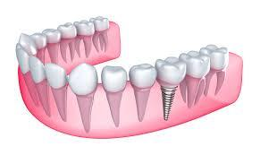 Dental Implant-get fixed teeth in single day Dental Implant is a titanium post (like a tooth root) that is surgically positioned into the jawbone beneath the gum line that allows your dentist to mount replacement teeth or a bridge into that area. An implant doesn't come loose like a denture can.  Why tooth loss matters?  A missing tooth or teeth can not only take away from the beauty of your smile, but tooth loss can also have many negative effects on your oral health, including:  Bone loss Shifting and drifting teeth Bite changes Chewing difficulty Wearing down of remaining teeth Changes in the jaw joint Types of Implant Placement: Whether an implant is placed immediately or in 2 phases depends on a variety of factors like bone density, initial fit of the implant during surgery, the other teeth, area of jaw, loads received during chewing etc.  Dental implant placement can be of two types:  Immediate single stage placement: In this type we place an implant and give you at least a temporary crown immediately, followed by a permanent crown shortly thereafter. Delayed (2 stage) Implants: Such a placement is usually to safeguard the implant from any early forces when its just healing and fusing within the bone. After the placement the implant is kept covered below the gum for 3 months and uncovered after this period to give you a permanent crown.  Benefits: Now that you know about the different types, it is time to move on to the benefits of getting these.  Long lasting: Compared to other treatments such as tooth bridges which last for 5-10 years, dental implants can last for an entire lifetime if maintained properly. The only part to replace is the crown.  Mimicking natural teeth: Your replacement teeth will feel similar to your actual teeth, so you do not need to worry about your self-image issues. Flash that wonderful smile of yours without thinking over it the second time.  Preserve surrounding teeth: When an implant is inserted in place of a missing tooth, adjacent